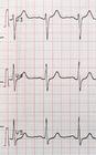Medicare EKG G0403 93000